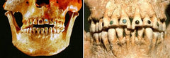 Ancient Civilizations - Gold Teeth with Gemstones
