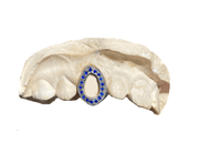 Blue Sapphire Open Face Grillz on White Gold