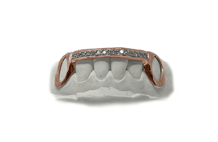 Diamond Bridge Grillz with Solid Gold Open Face Fangs in 14K Rose Gold