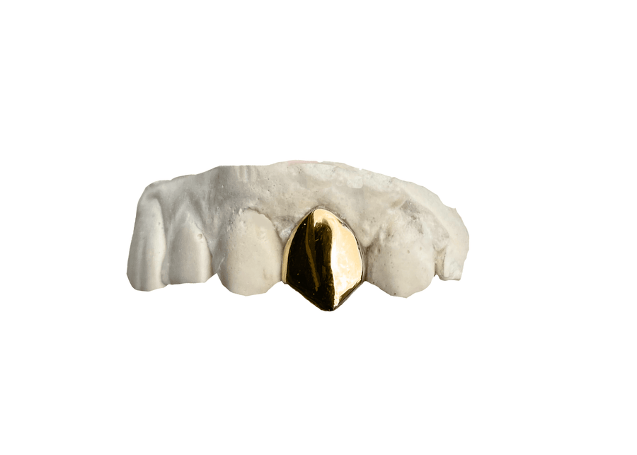 Single Tooth Grillz - Top Yellow Gold 18K