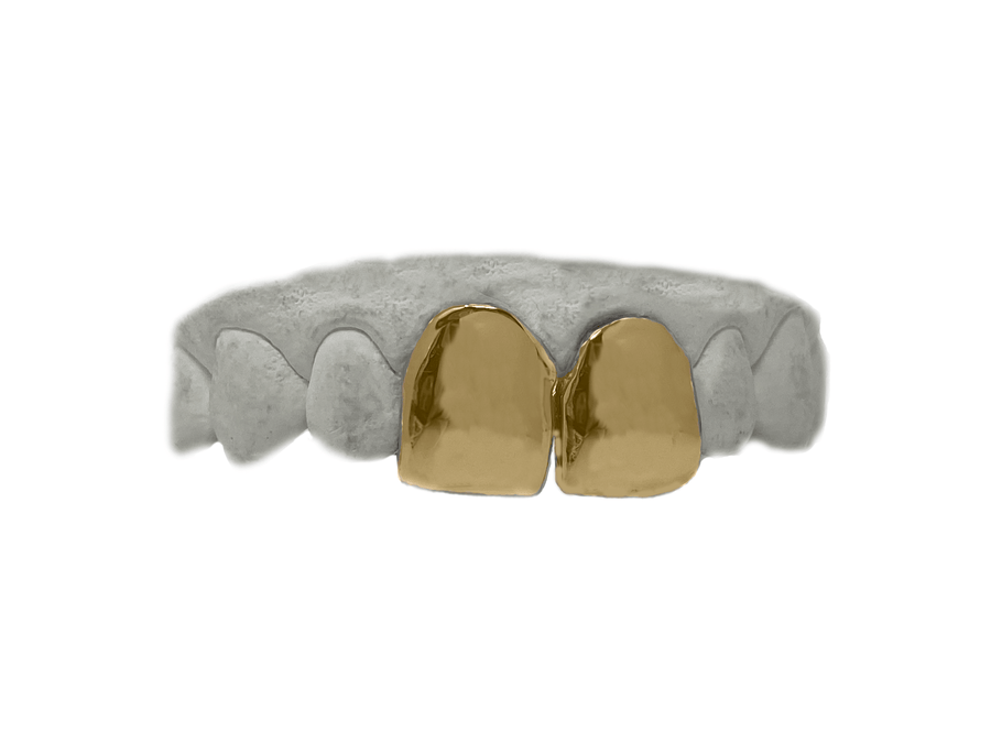 Top Two Front Teeth Grillz in 14K Yellow Gold
