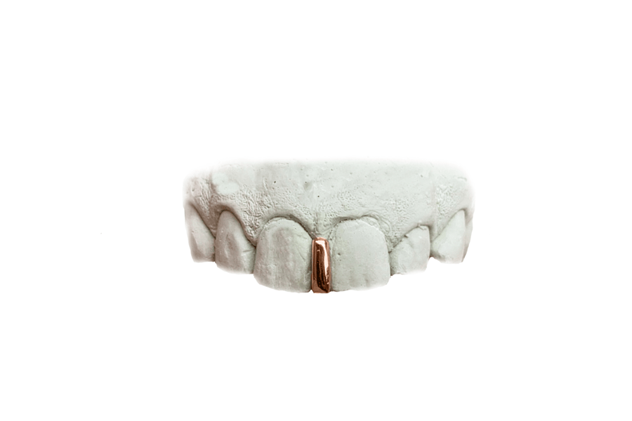 Gap Grillz in 18K Rose Gold
