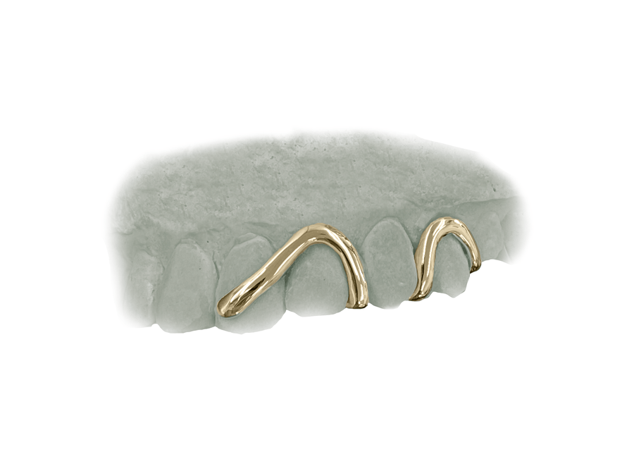 Top Wave Grillz in 14K Yellow Gold
