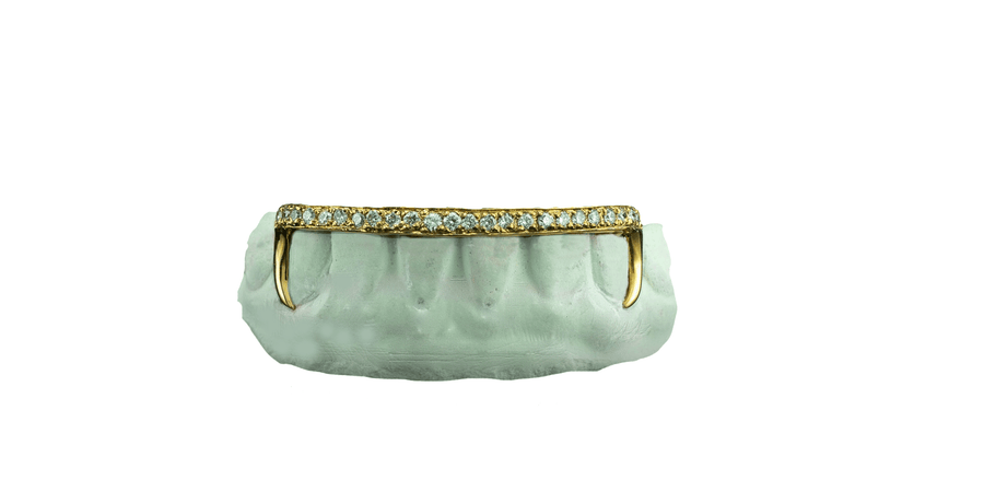 Kim Kardashian Grillz - Diamond Bridge 14K Yellow Gold