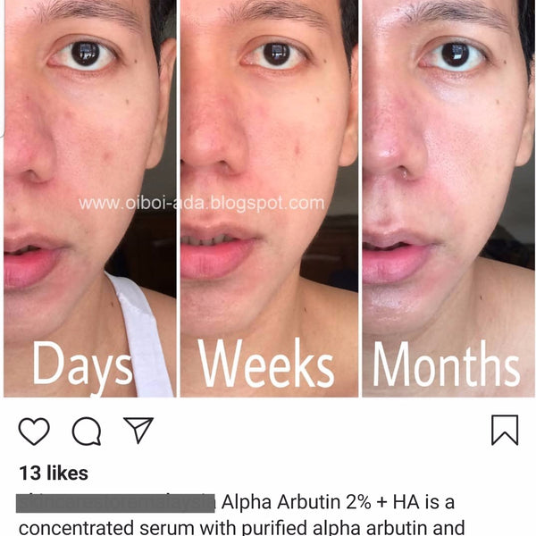Serum The Ordinary Alpha Arbutin 2% + HA