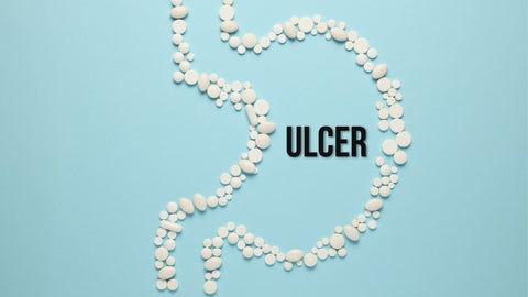 STOMACH ULCER: SYMPTOMS AND SIMPLE HOME REMEDIES TO HEAL