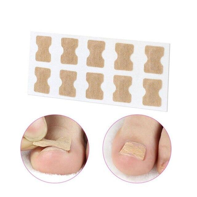 Free Glue Corrector Nail Patch Correction Stickers