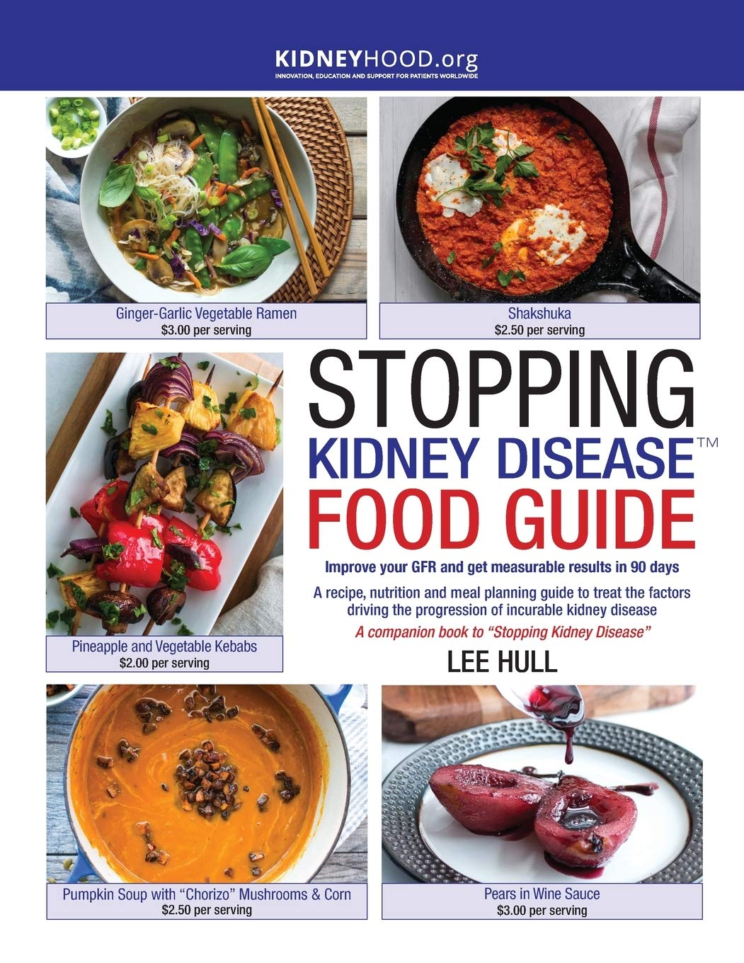Stopping Kidney Disease Food Guide: A recipe, nutrition incurable kidney disease (Stopping Kidney Disease(tm)) - Tolerant Planet