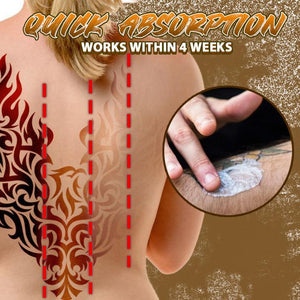 Innovative Tattoo Removal Cream