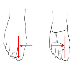 position of big toe before and after applying bunion sleeve