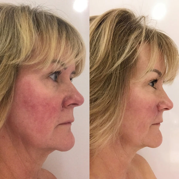CASE STUDY 2: ROSACEA & POST-OPERATIVE SCARRING