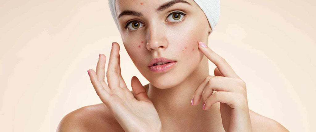 Acne: Herbal skin care