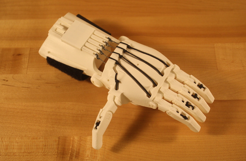 3D Printed Prosthetic Hand Completed