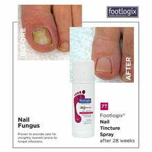 Load image into Gallery viewer, footlogix NAIL TINCTURE SPRAY BEFORE AND AFTER 28 WEEKS