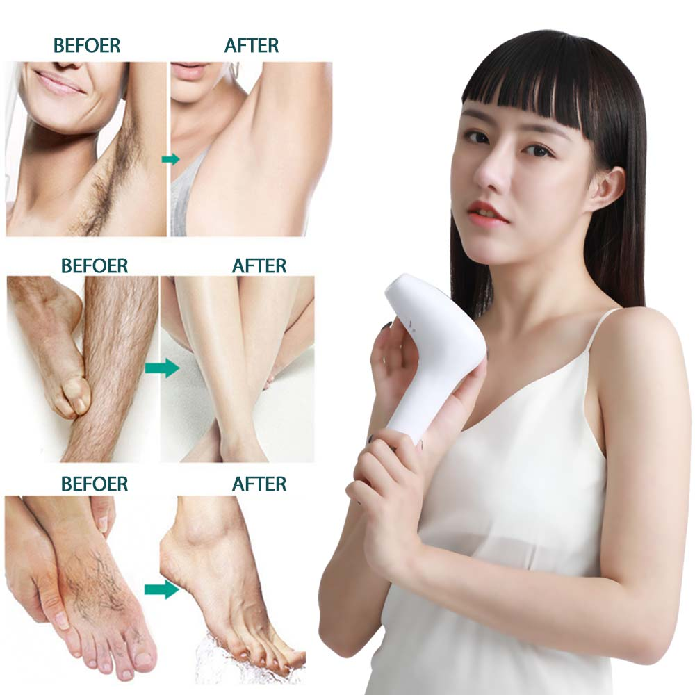 Professional Laser Hair Removal