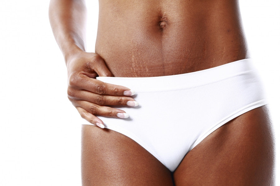What Is The Difference Between Cellulite And Stretch Markss