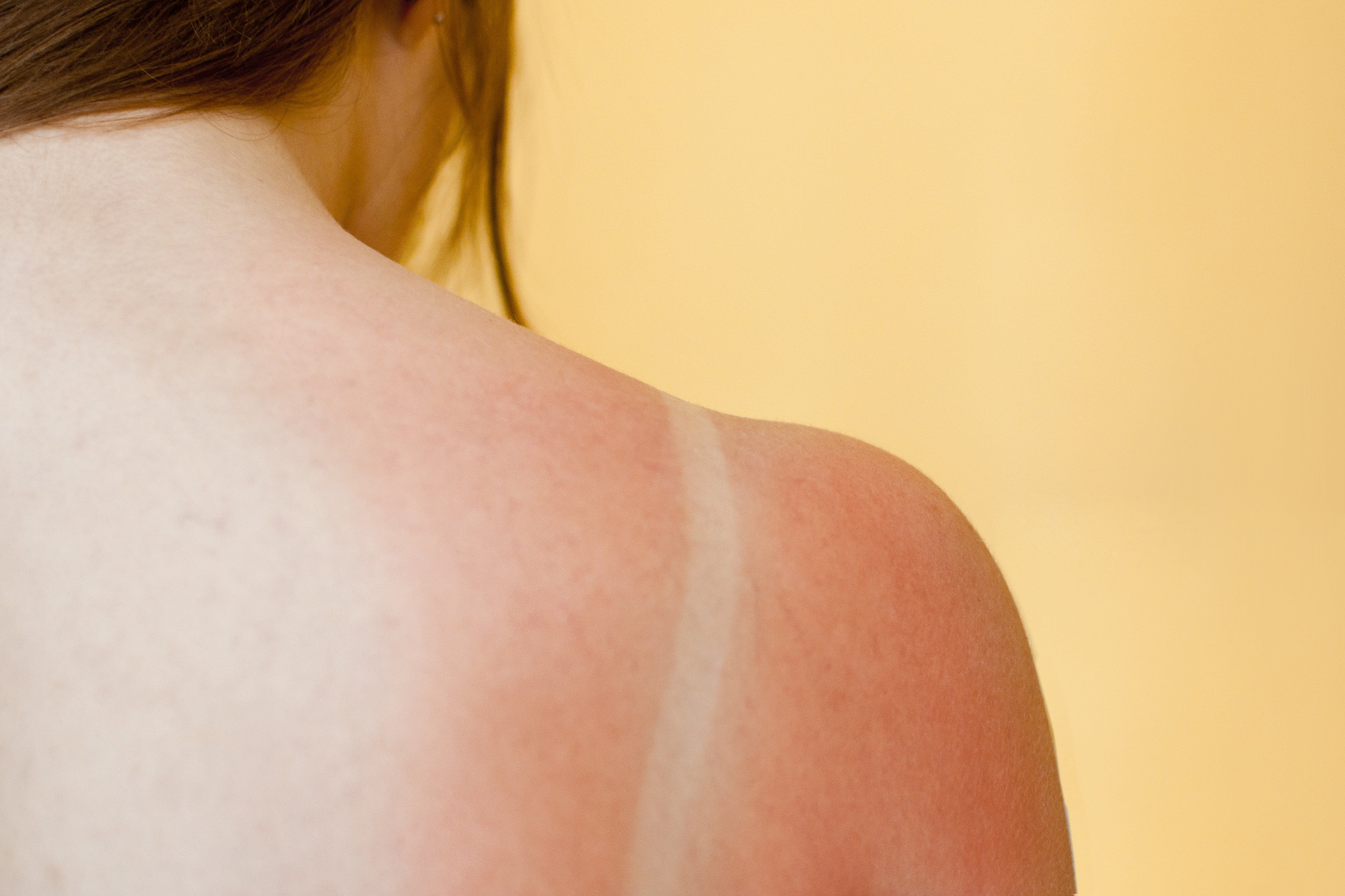 Brush On Block image of sun burn lined bathing suit on shoulders