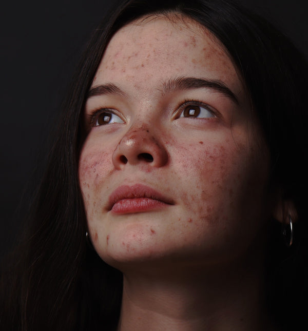 Photo of young woman with facial acne on dark background.