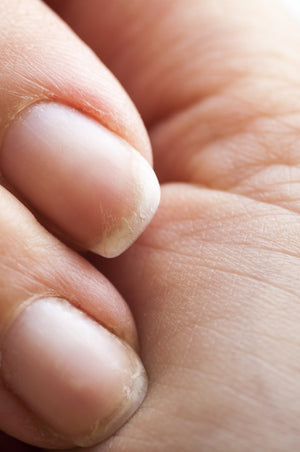 12 Home remedies for Brittle nails. How to Fix?