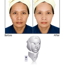 Load image into Gallery viewer, X8 Multi-Purpose LED PHOTON Skincare Mask