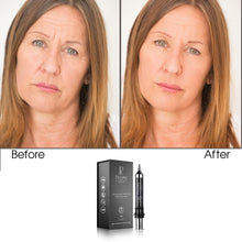 Load image into Gallery viewer, Age Defying Apple and Grape Stem Cell Facial Lifting Cream, 10g