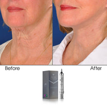 Load image into Gallery viewer, Age-Defying Stem Cell Chest & Neck Cream 10 GM - Secret Collagen