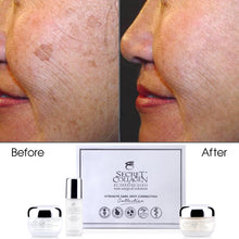 Load image into Gallery viewer, Intensive Dark Spot Correction Day/Night Complete Set - Secret Collagen