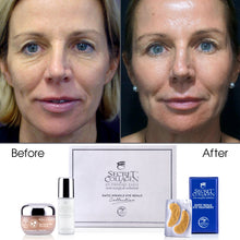 Load image into Gallery viewer, Rapid Wrinkle Repair Eye Care Collection - Secret Collagen