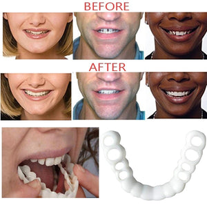 Oral Whitening Denture Orthodontic Braces Teeth