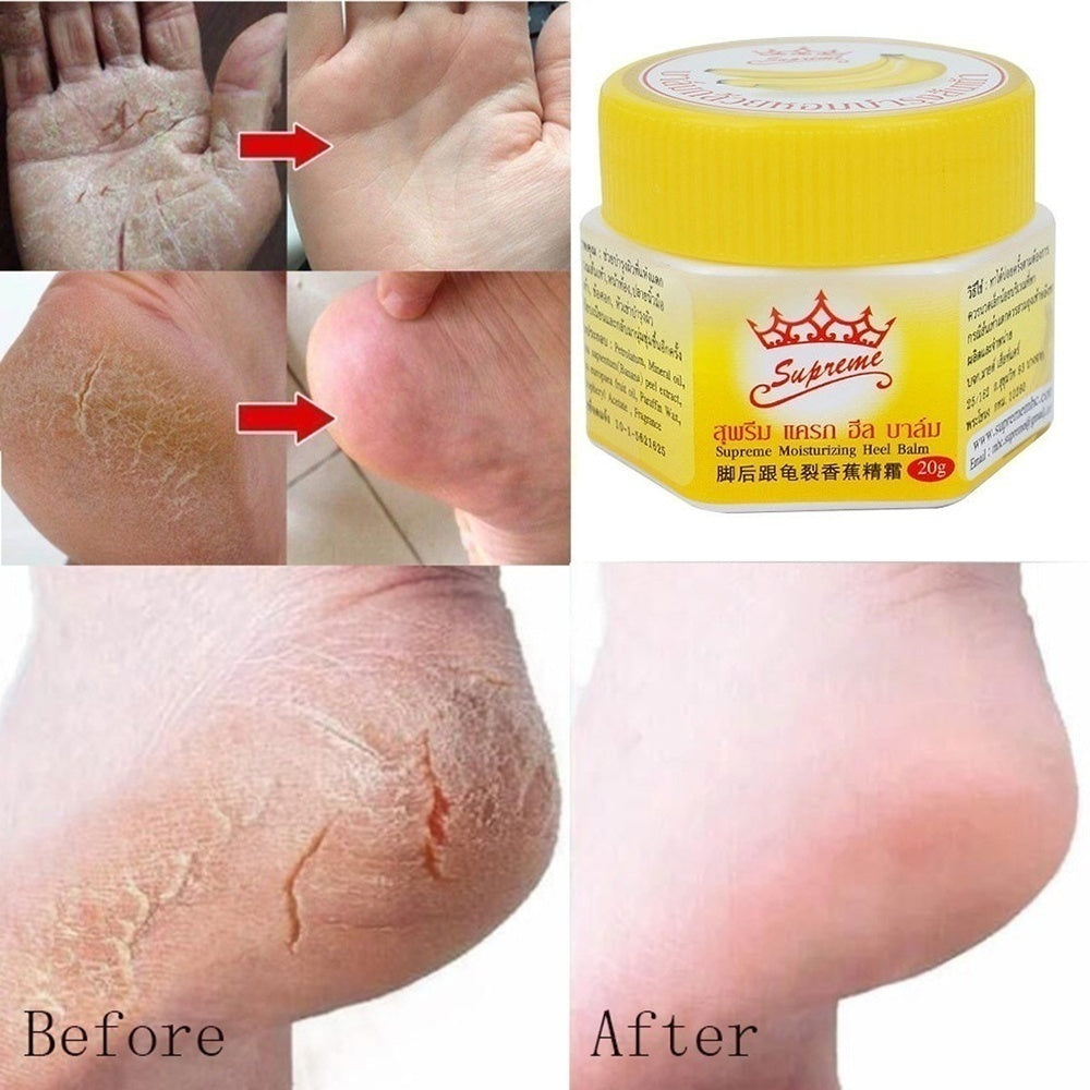 1/2Pcs Hand Foot Heel Nourish Anti Fungal Anti Chapped Odor Treatment Banana Oil Repair Anti-Drying Crack Cream Dead Skin Remover Skin Care Product