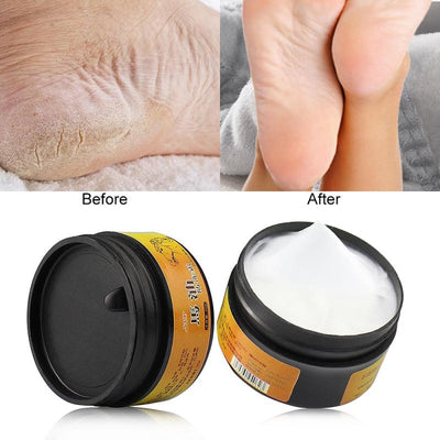 Nail Foot Protector Treatment Skin Care Cream Nail Fungus Horse Oil Whitening Hand Lotion Nourishing Hand Care Cream TSLM1