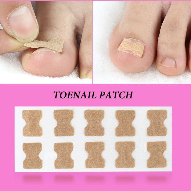 Ingrown Toenail Corrector Sticker Paronychia Treatment Fixer Recover Corrector Pedicure Foot Toe Nail Care Tool Glue Free