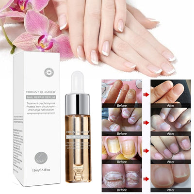 Fungal Nail Repair Essence Serum Care Herbal Nail Treatments Nail Fungus Art Repair Tools Foot Nail Care Onychomycosis TSLM2