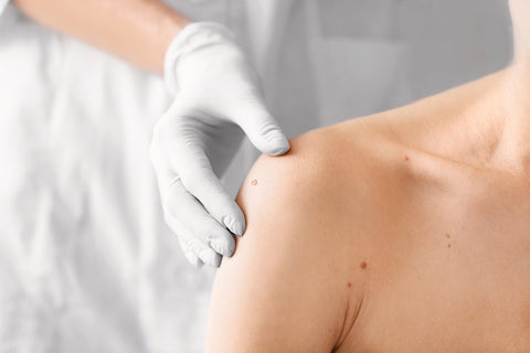 close up image of a dermatologist examining a patient with a skin tag on their shoulder