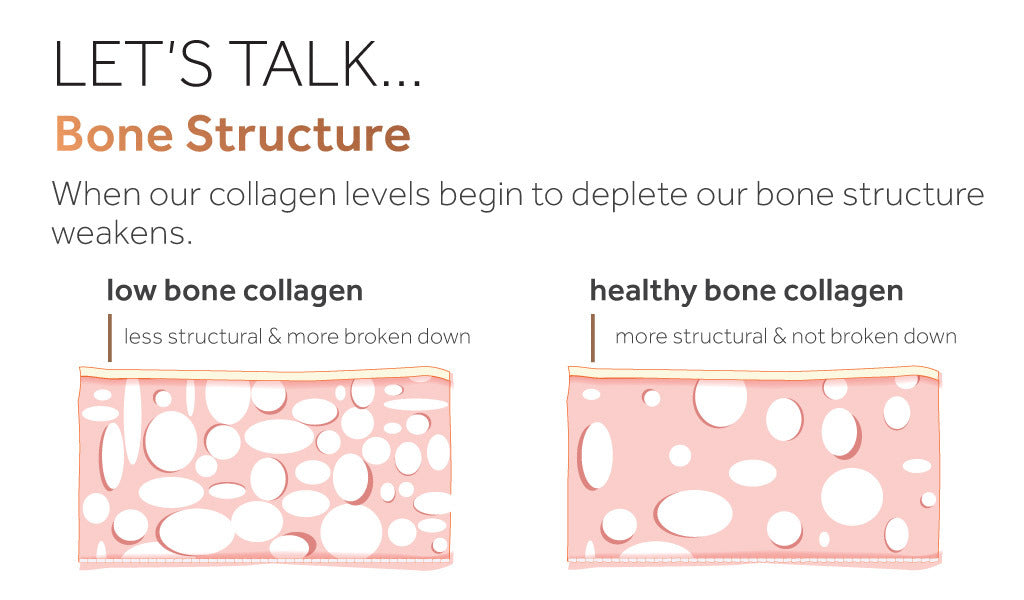Diagram showing the effect of decreased collagen levels on bone structure
