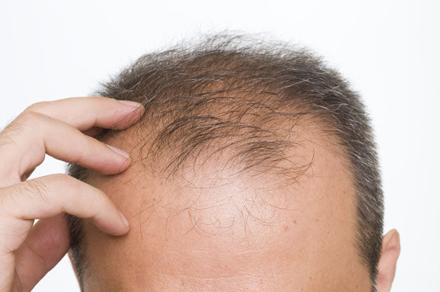 What is Alopecia ?
