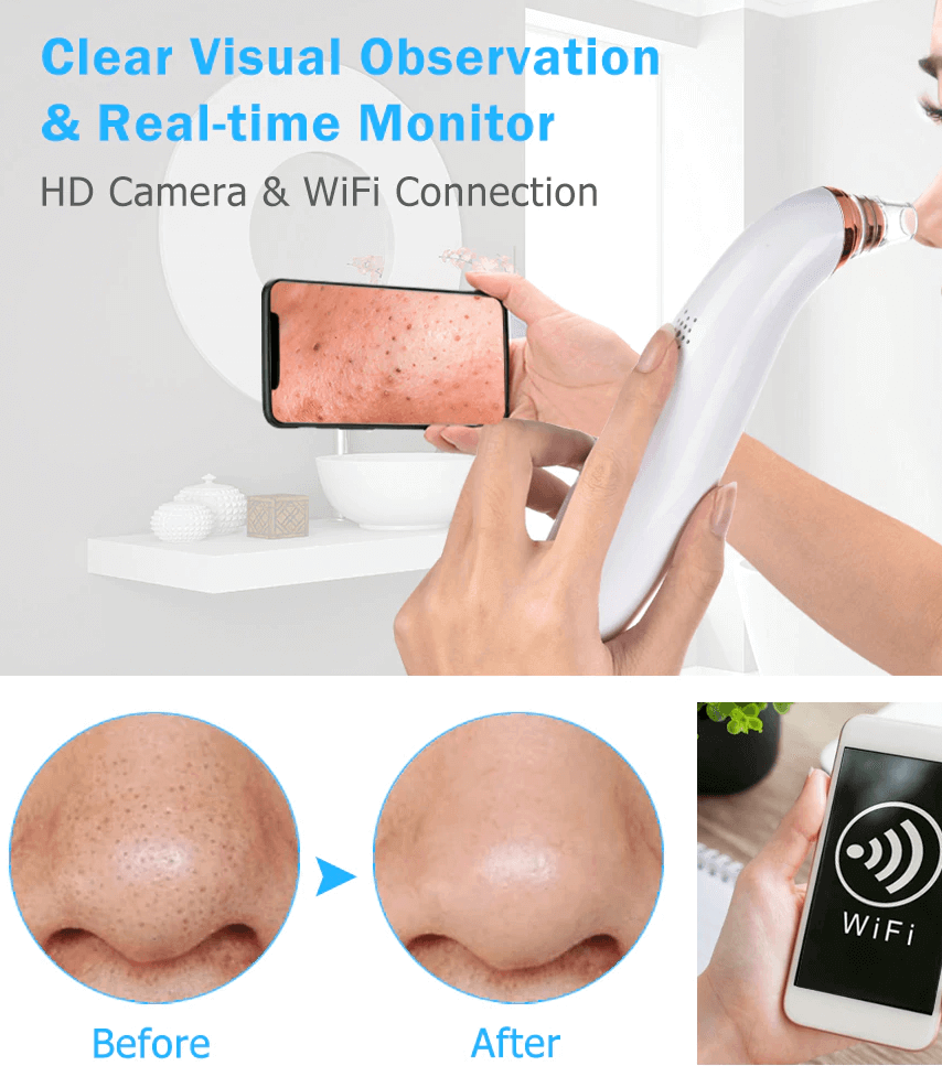 Blackhead Suction Remover