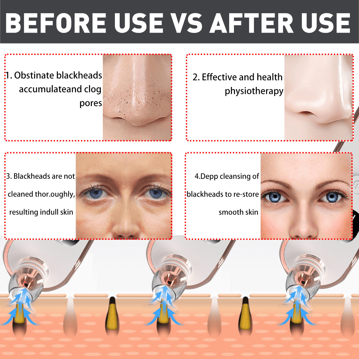 How To Close A Pore After Removing A Blackhead