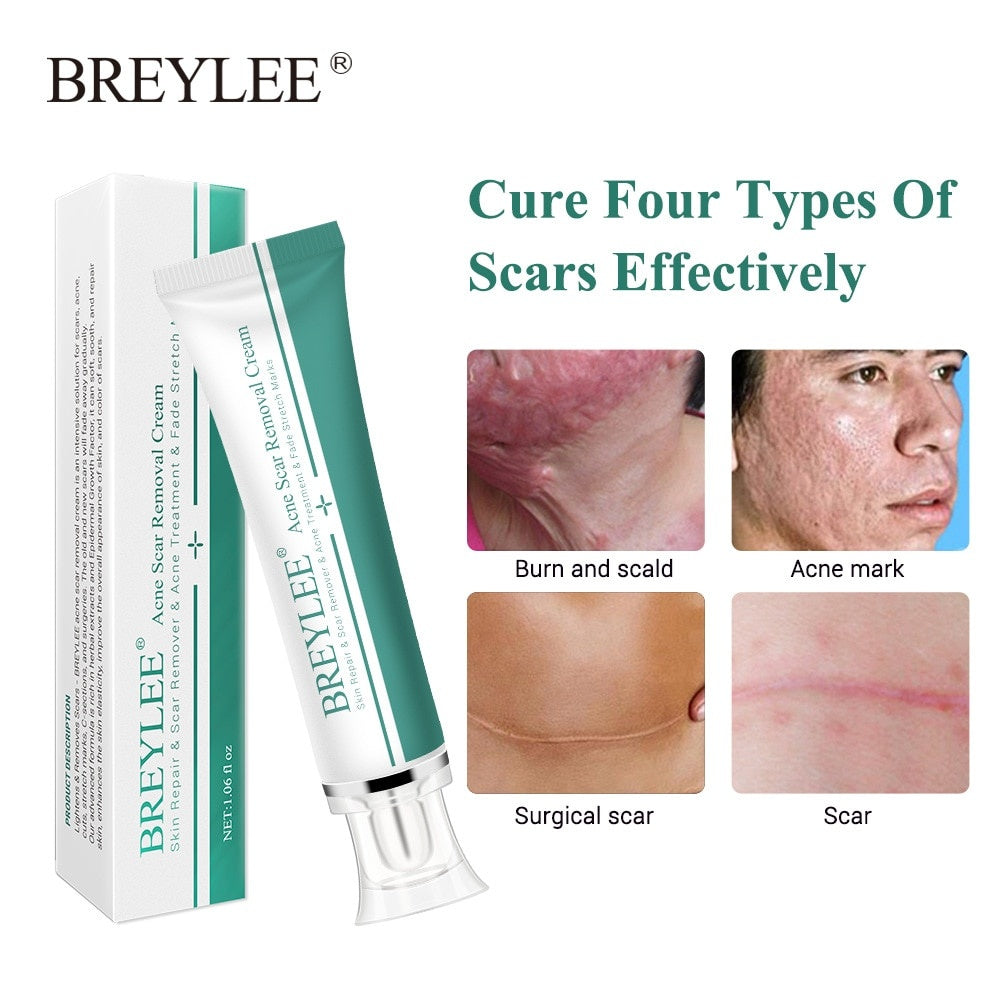 30g Scar Removal Cream Face Acne Scar Stretch Marks Remover Cream Acne Treatment Skin Repair Stretch Marks Cream Skin Care
