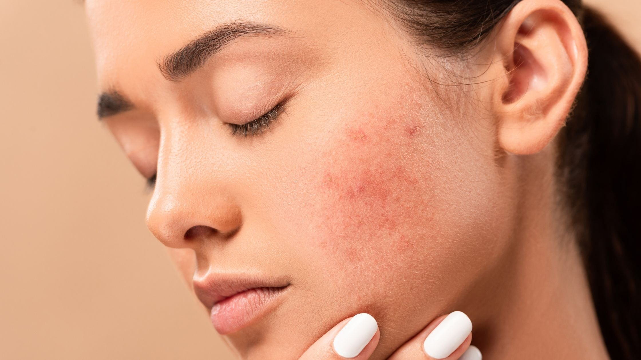 What is hormonal acne?