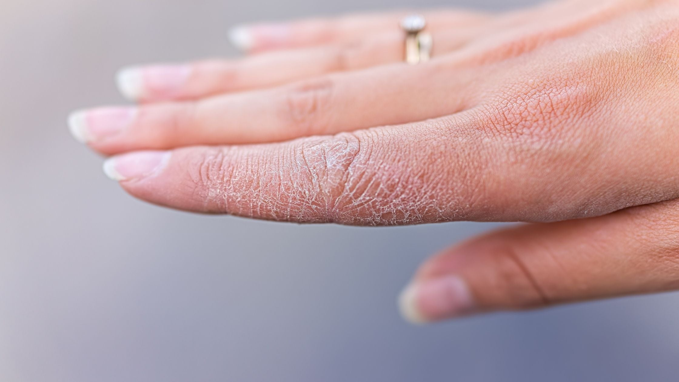 How To Get Rid Of Dry Hands?