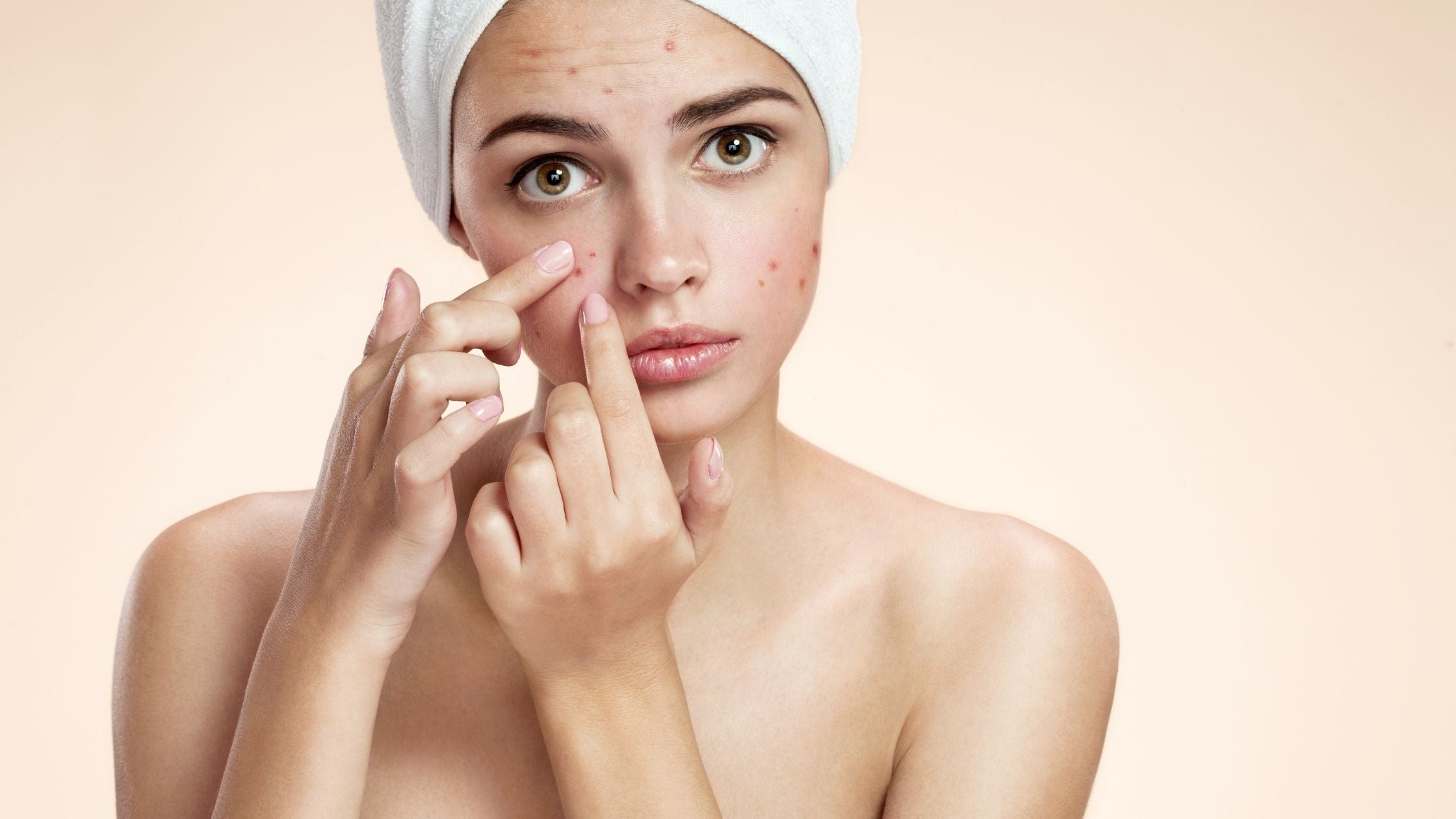 Can Acne Cause Hyperpigmentation?