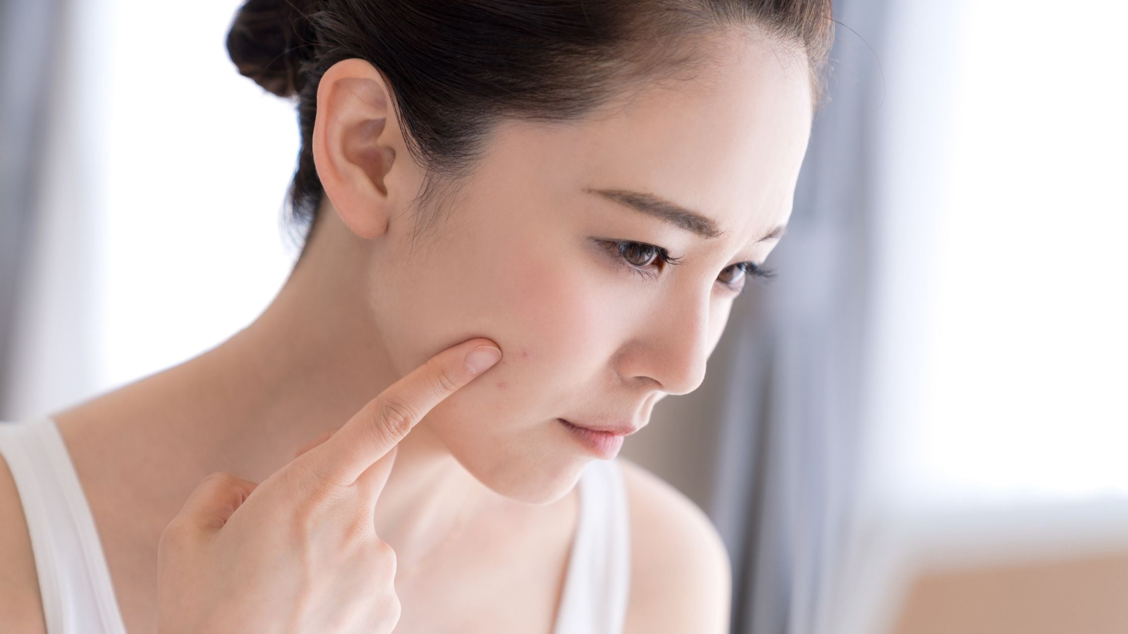 Are blemishes and pigmentation the same?