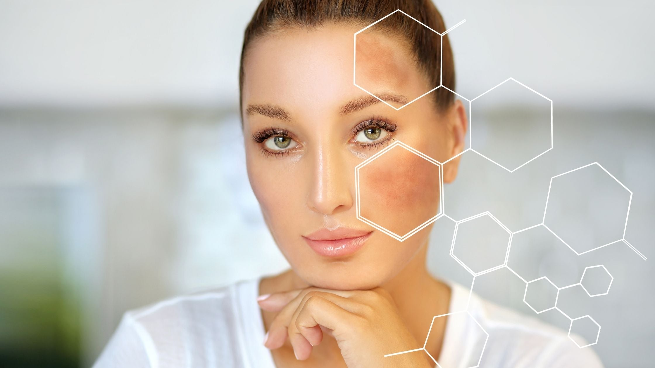 How To Control Post-inflammatory Hyperpigmentation