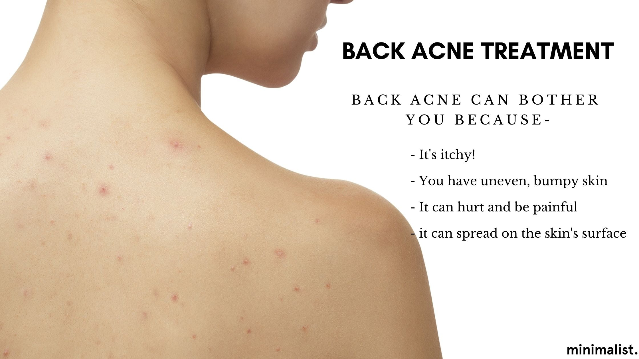 What Does Back Acne Look Like?