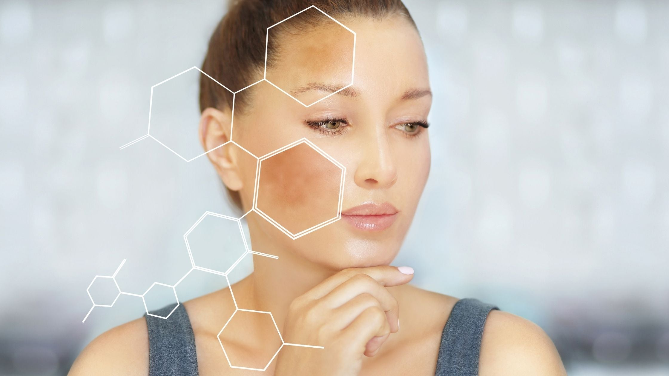 What is Melasma and how to treat it?