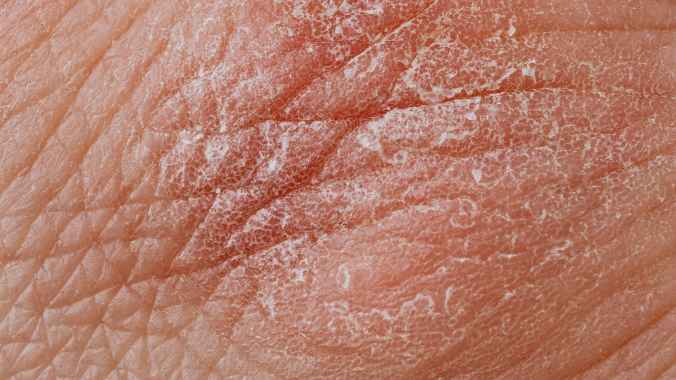 Is Psoriasis a Serious Skin Condition?