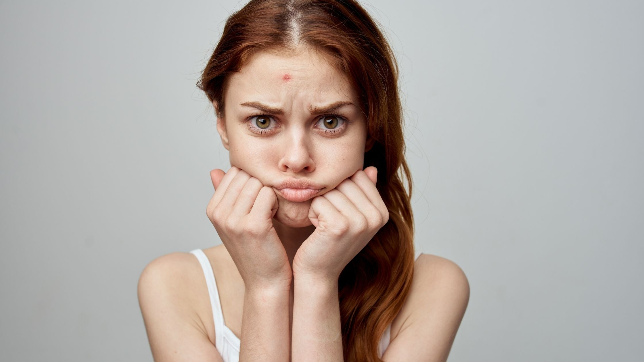 Dealing With Forehead Acne