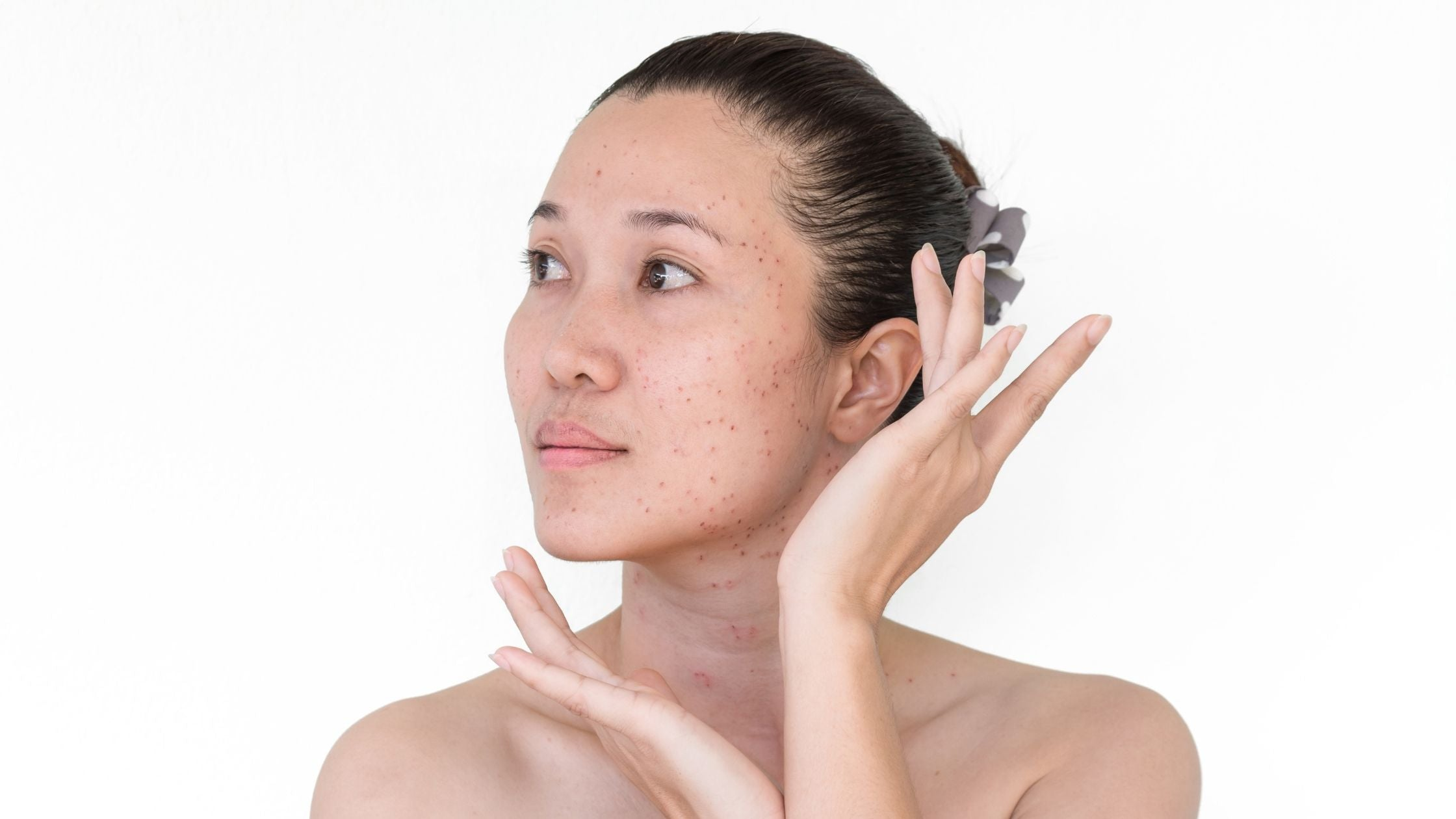 How to remove & prevent Age spots?