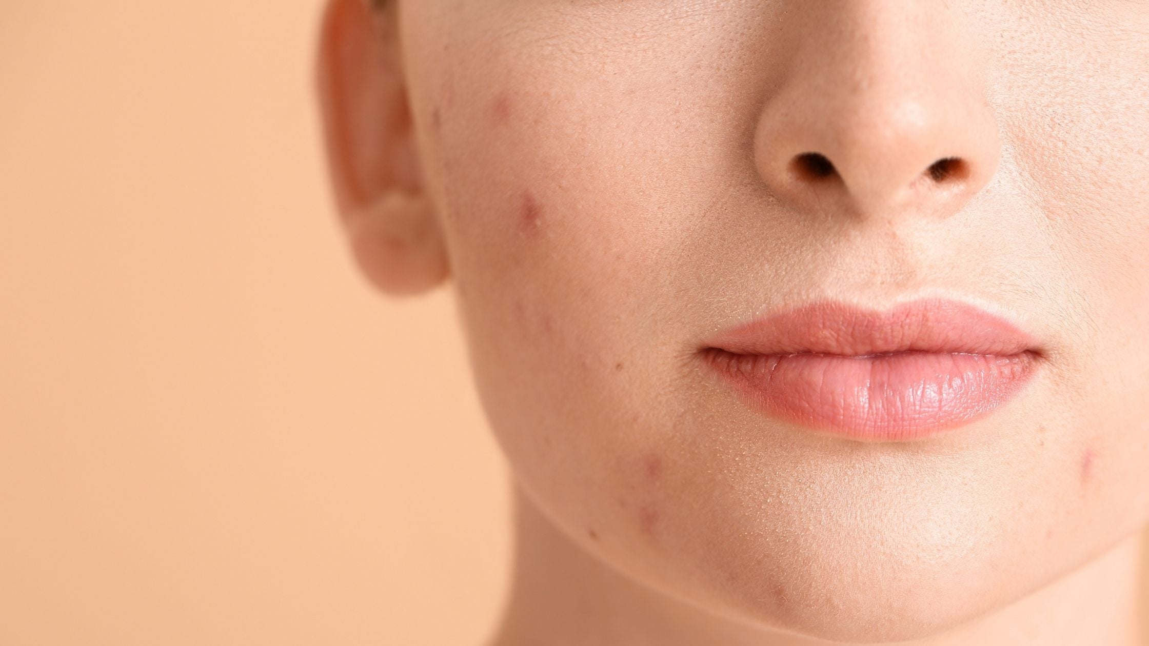 Spot Treatment for acne